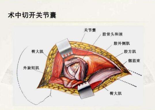 骨科基础 —髋关节解剖